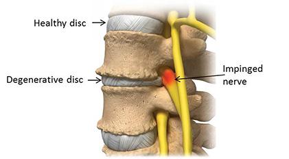 What is Degenerative Discs?