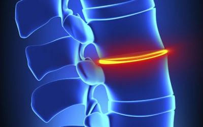 Orthopaedic Evidence-Based Medicine