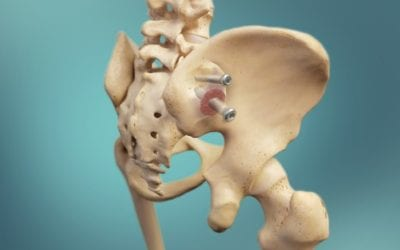 SI Joint Dysfunction: A Common Cause of Low Back Pain